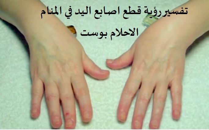 رؤية قطع اصابع اليد