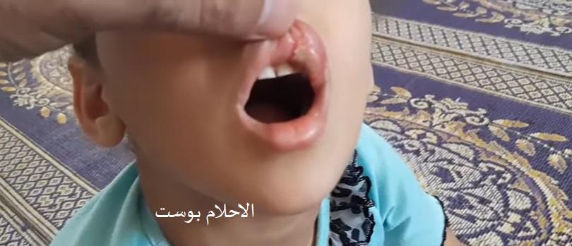 علاج تقرحات الفم