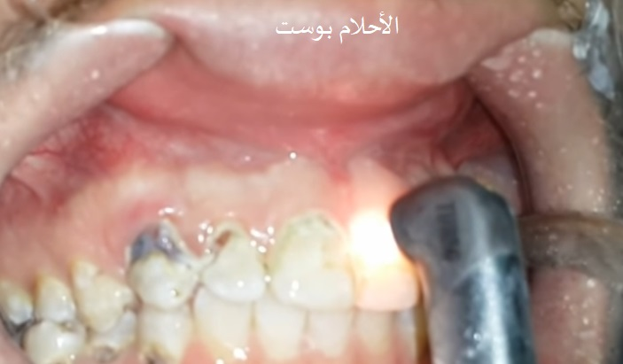 تسوس الأسنان بالليزر