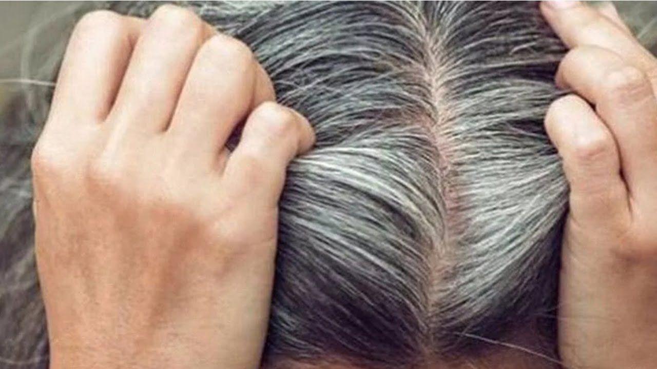 علاج ظهور الشعر الأبيض في سن العشرين
