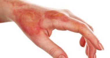 علاج حروق اليد من الفرن